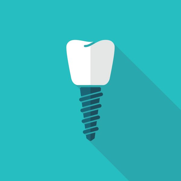 The Main Differences Between All On   And Dental Implants