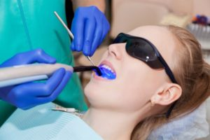 Why You Should Fix Cavities With Laser Dentistry