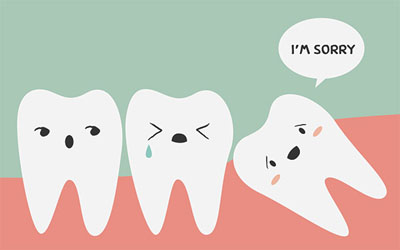 Wisdom Tooth Extractions: It's Not As Bad As One Might Think